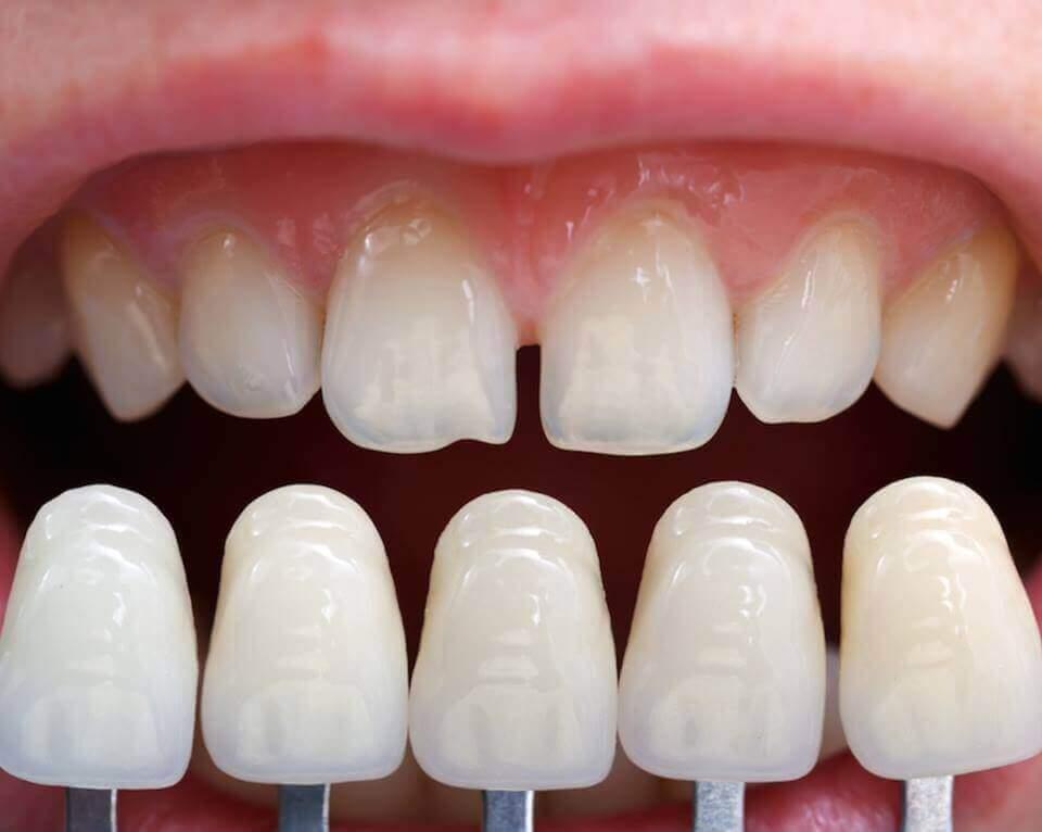 dental-implants-blog1